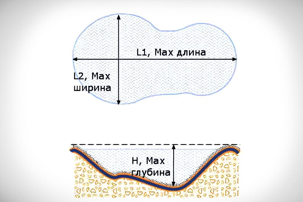 Гидроизоляция и дренаж